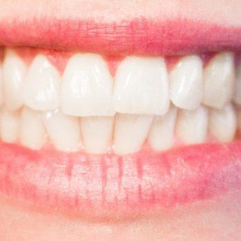 albirea dintilor acasa natural