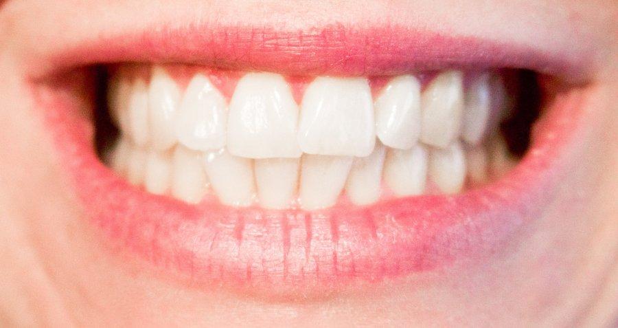 carbune activ pentru dinti pret